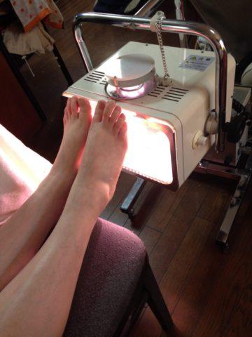 足裏への光線治療